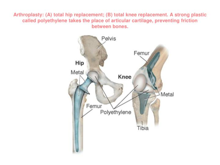 Arthroplasty: (A) total hip replacement; (B) total knee replacement. A strong plastic called polyethylene takes the place of articular cartilage, preventing friction between bones.