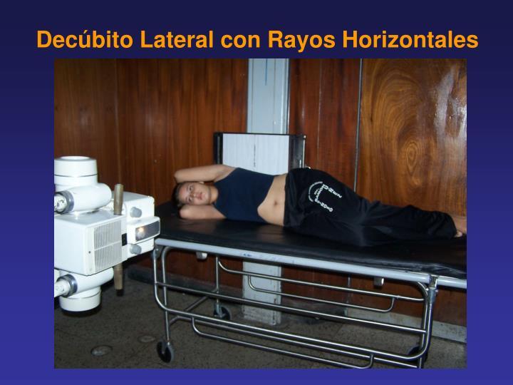 Decúbito Lateral con Rayos Horizontales