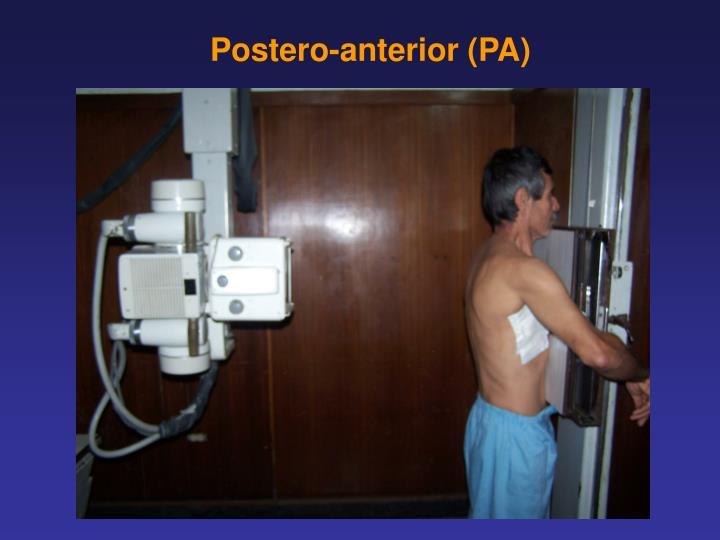 Postero-anterior (PA)