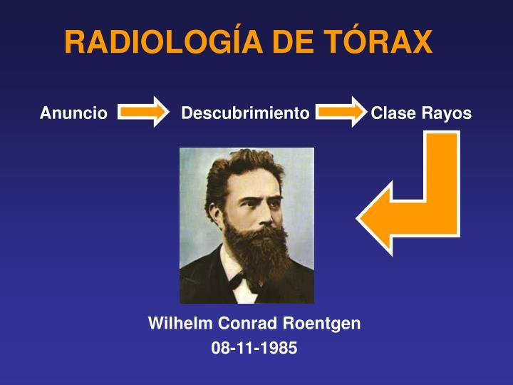 Radiolog a de t rax1