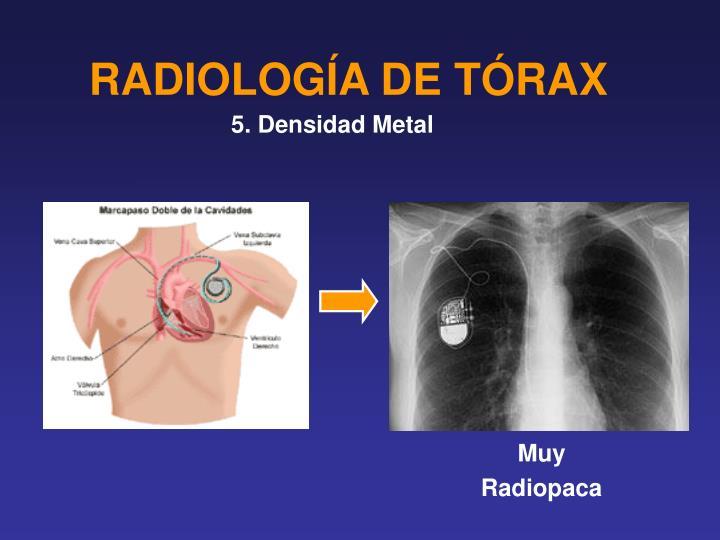 RADIOLOGÍA DE TÓRAX