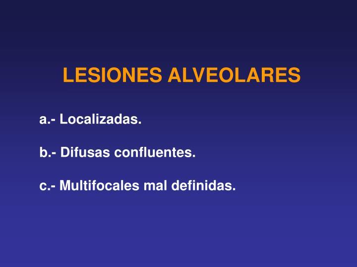 LESIONES ALVEOLARES