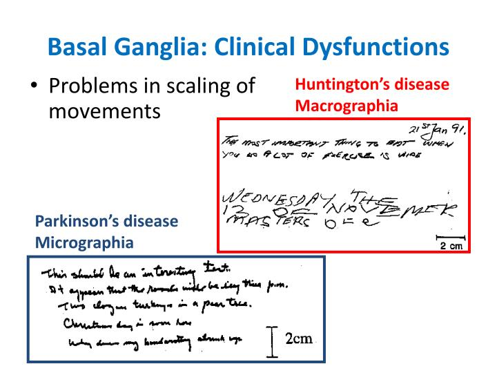 Basal Ganglia: Clinical Dysfunctions