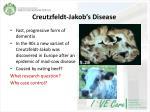 creutzfeldt jakob s disease