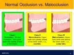 normal occlusion vs malocclusion