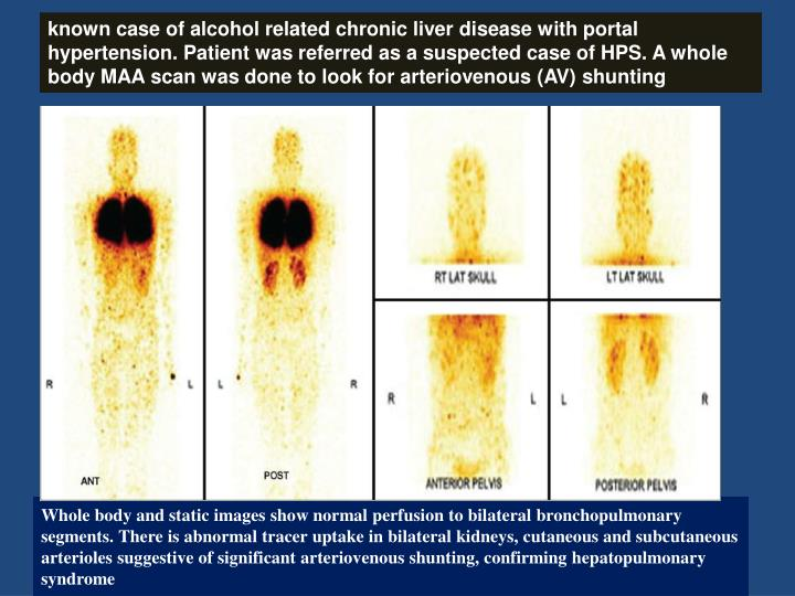 known case of alcohol related chronic liver disease with portal hypertension. Patient was referred as a suspected case of HPS. A whole body MAA scan was done to look for