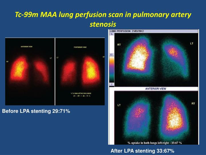 Tc-99m MAA lung perfusion scan in pulmonary artery stenosis