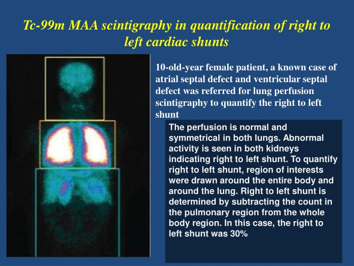 Tc-99m MAA scintigraphy in quantification of right to left cardiac shunts