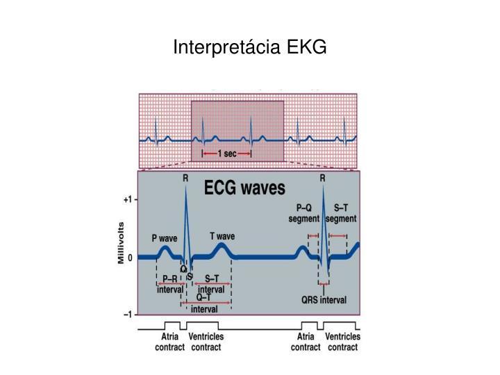 Interpretácia EKG