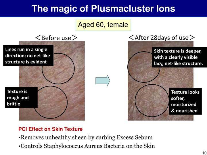 The magic of Plusmacluster Ions