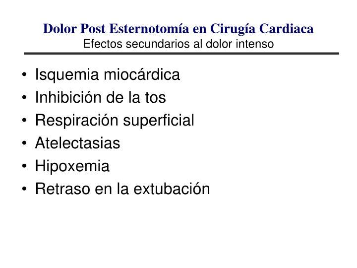 Dolor Post Esternotomía en Cirugía Cardiaca