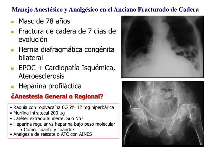Manejo Anestésico y Analg