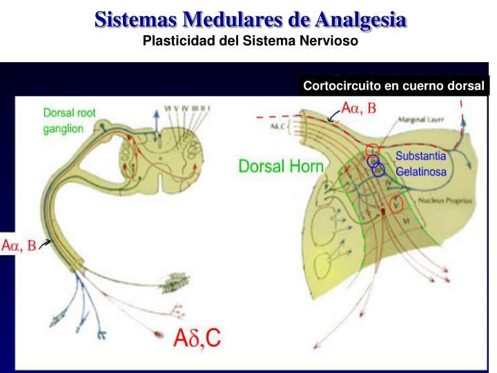 Sistemas Medulares de Analgesia
