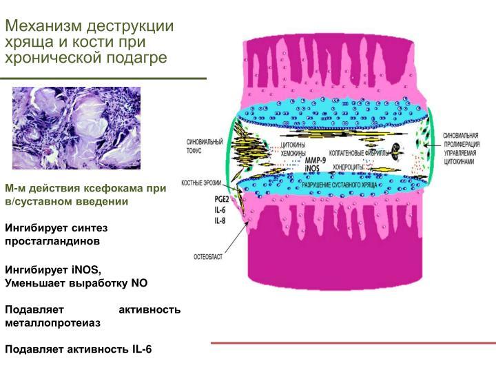Механизм деструкции хряща и кости при хронической подагре