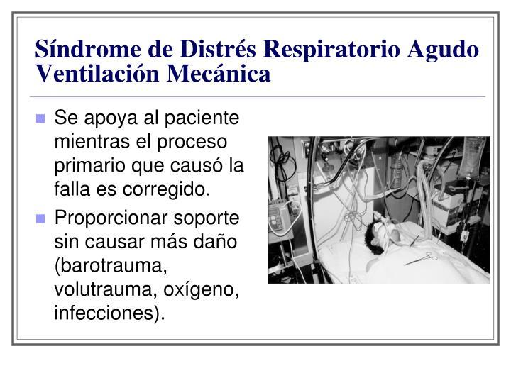 Síndrome de Distrés Respiratorio Agudo Ventilación Mecánica