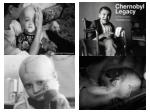 chernoble fallout victims