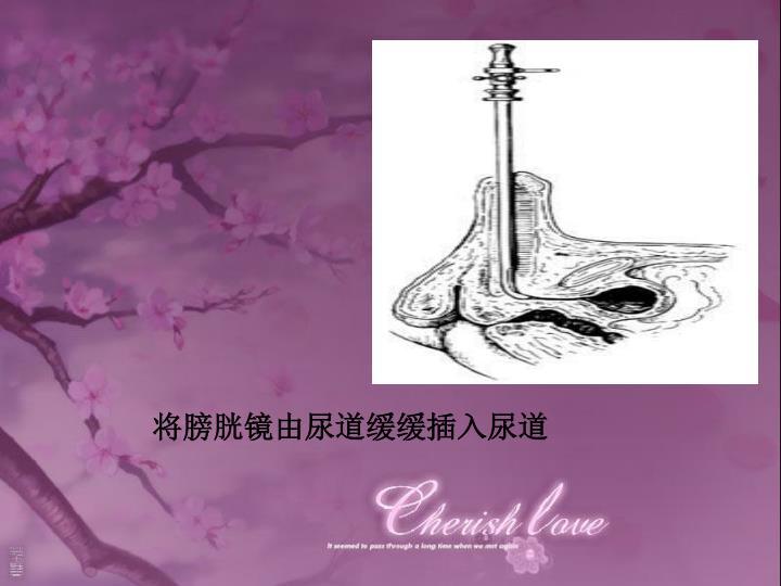 将膀胱镜由尿道缓缓插入尿道