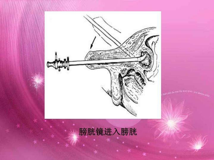 膀胱镜进入膀胱