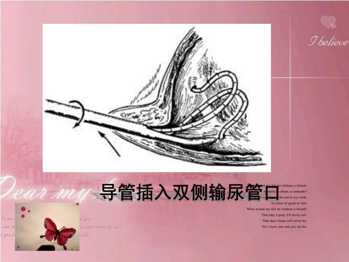 导管插入双侧输尿管口