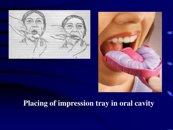 Placing of impression tray in oral cavity
