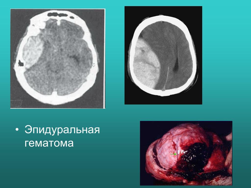 такой внутричерепная гематома фото установкой