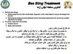 bee sting treatment