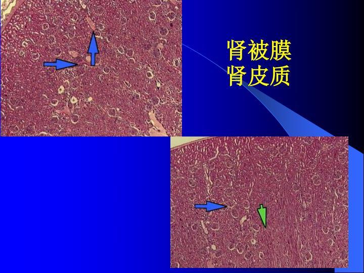 肾被膜肾皮质