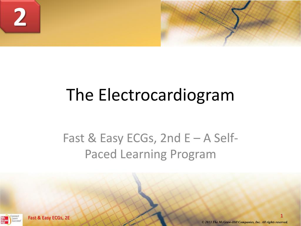Ppt The Electrocardiogram Powerpoint Presentation Id5955658 Wires And Cables Template Is A Free N