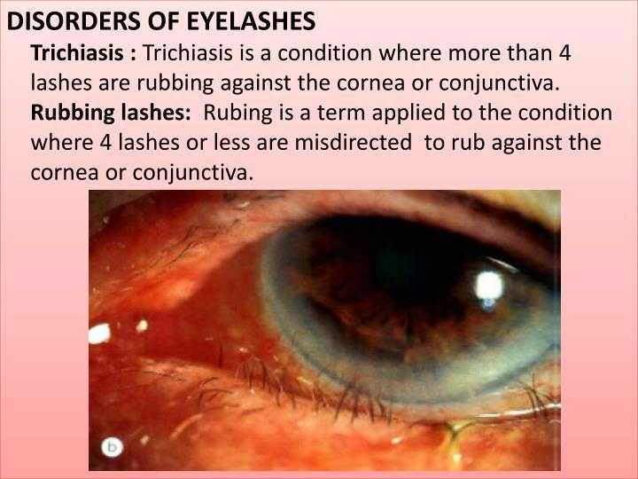 Ppt The Eyelids Powerpoint Presentation Id5959246