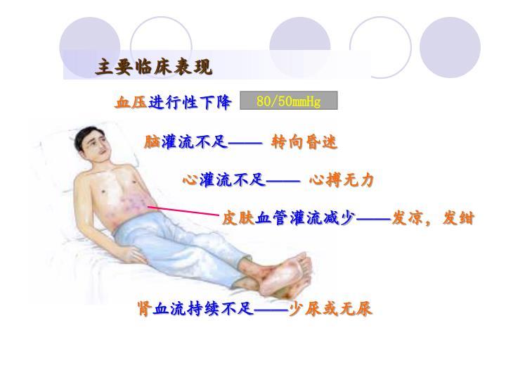 主要临床表现