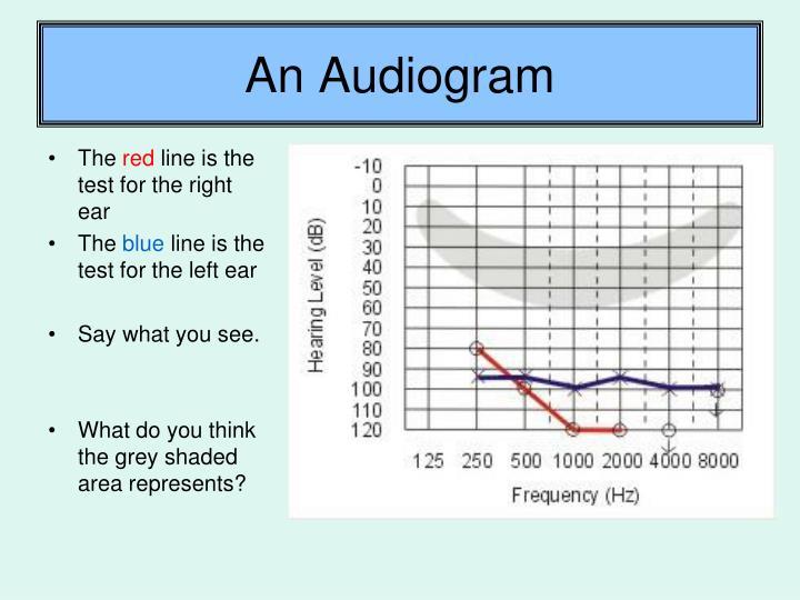 An Audiogram