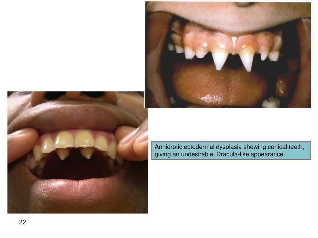 PPT - Essentials of Oral Pathology Volume I PowerPoint