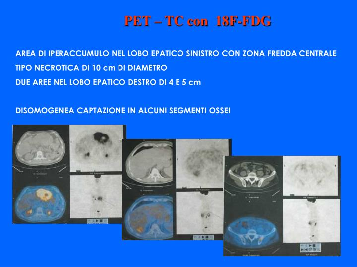 PET – TC con  18F-FDG