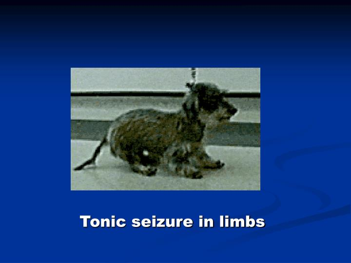 Tonic seizure in limbs