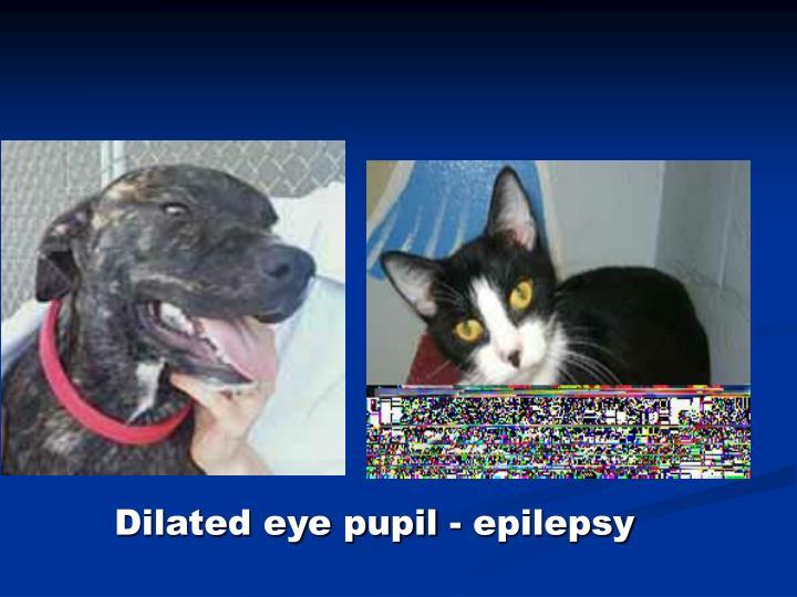 Dilated eye pupil - epilepsy