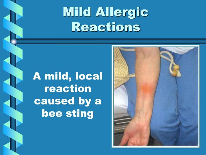 Mild Allergic Reactions