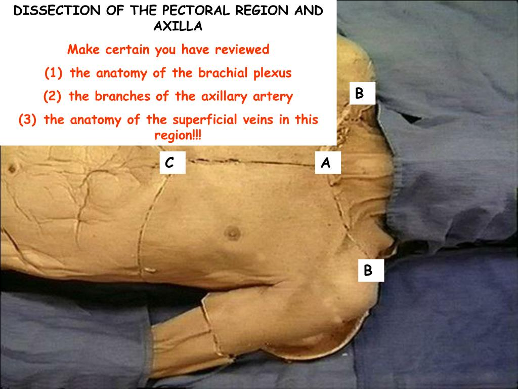 Ppt Dissection Of The Pectoral Region And Axilla Make Certain You