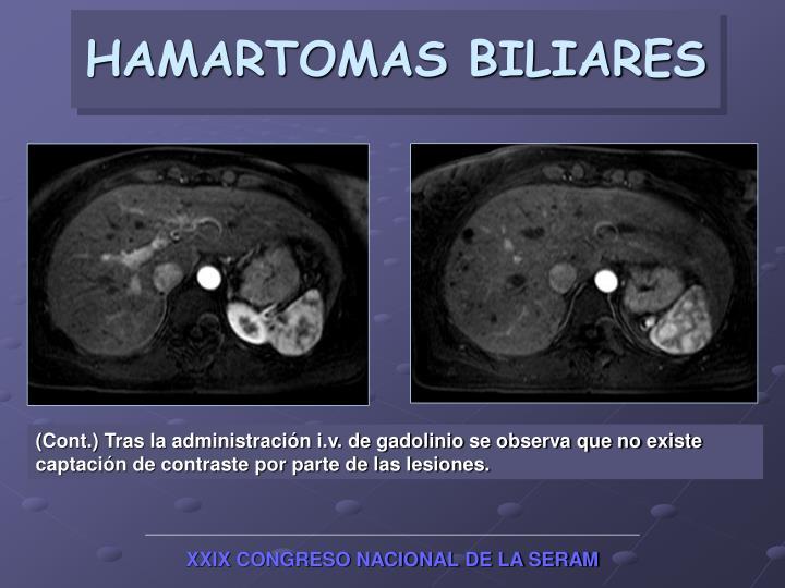 HAMARTOMAS BILIARES
