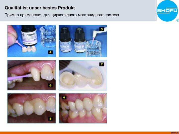 Пример применения для циркониевого мостовидного протеза