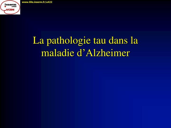 La pathologie tau dans la  maladie d'Alzheimer