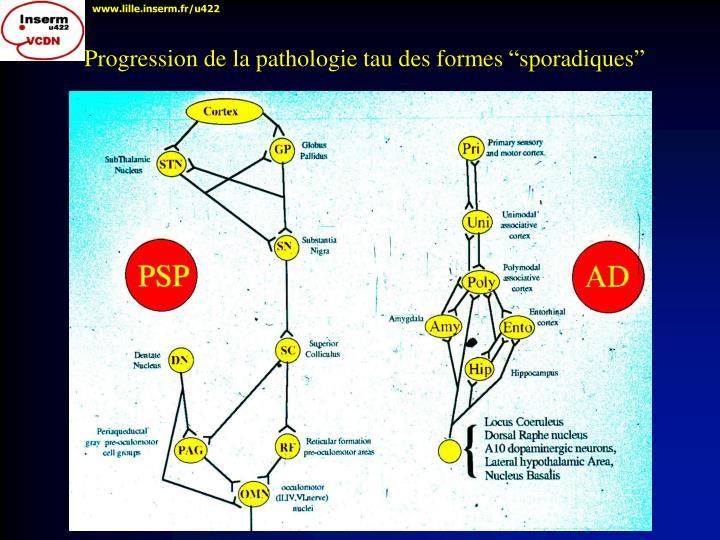 """Progression de la pathologie tau des formes """"sporadiques"""""""