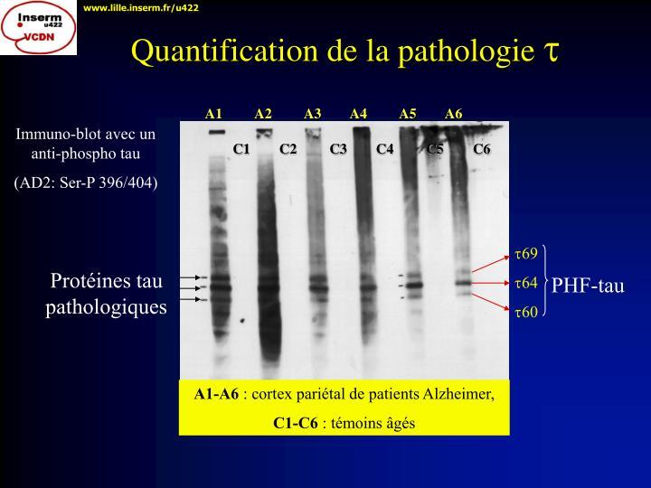 Quantification de la pathologie