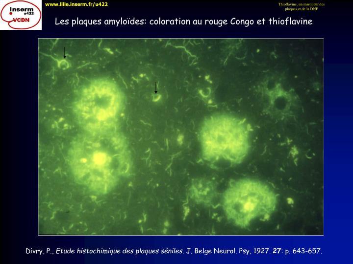 Thioflavine, un marqueur des plaques et de la DNF