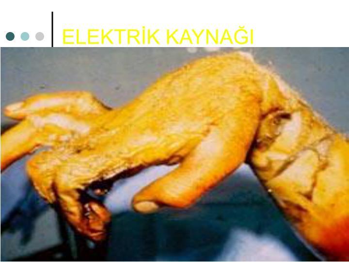 ELEKTRİK KAYNAĞI