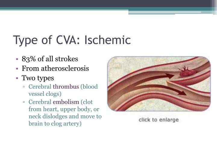 cardiovascular accident or stroke Stroke & vascular specialists: vascular neurology (brain blood vessels) vascular & interventional radiology read about other experiences, ask a question about cerebrovascular accident, or answer someone else's question, on our message boards.