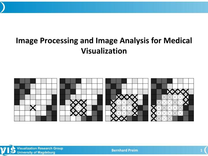 image processing and image analysis f o r medical visualization n.