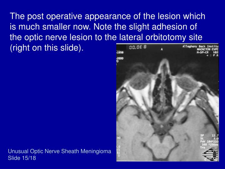The post operative appearance of the lesion which is much smaller now. Note the slight adhesion of the optic nerve lesion to the lateral orbitotomy site (right on this slide).