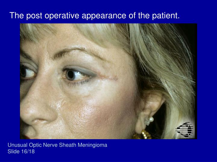 The post operative appearance of the patient.