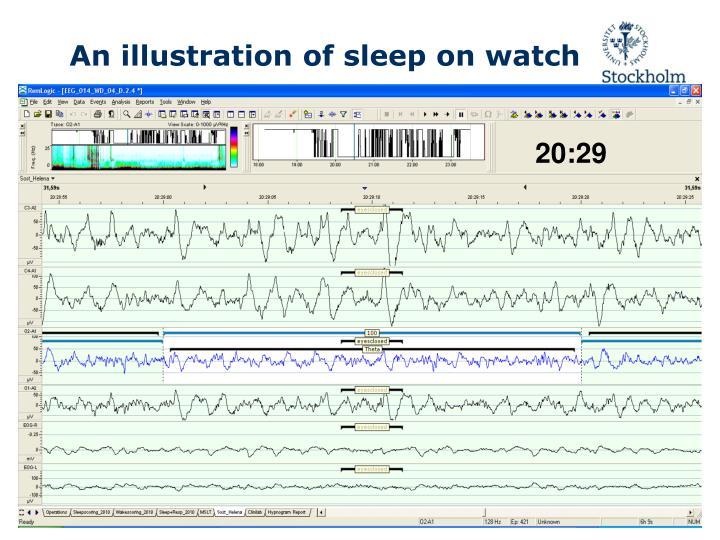 An illustration of sleep on watch