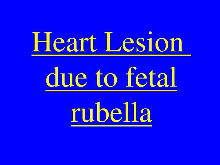 Heart Lesion